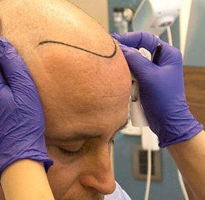 Przeszczep włosów w Stambule za pomocą polskiego pośrednika