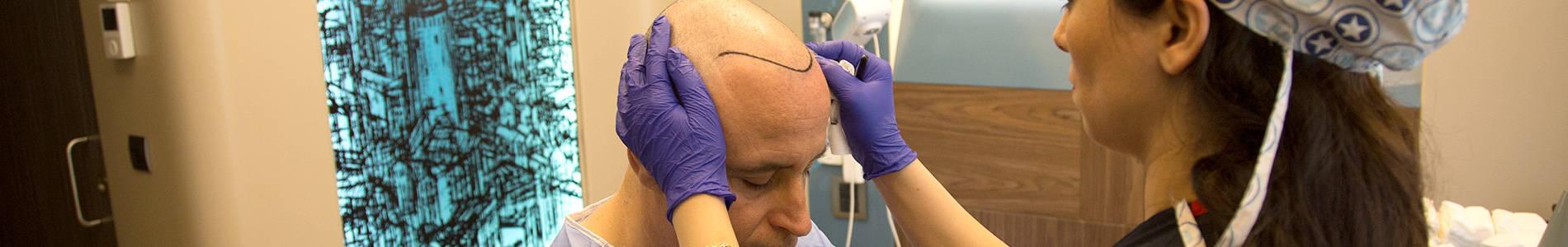 Przeszczep włosów w Stambule