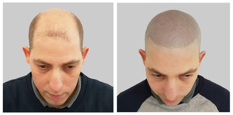 pigmentacja skóry głowy jako ratunek dla łysienia