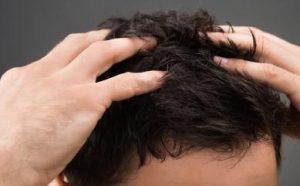 trycholog wrocław leczenie skóry głowy